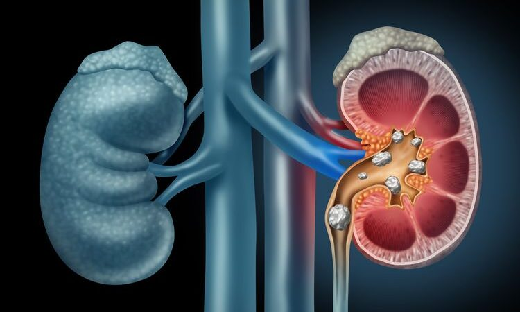 Presentase Pasien Melanoma Ginjal Di Usia Muda Semakin Meningkat
